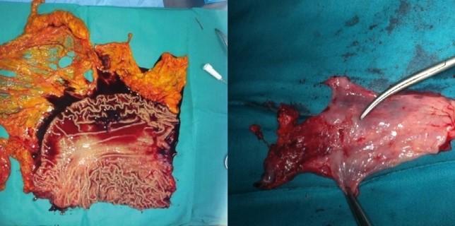 Carcinoma escamoso sarcomatoide de la unión gastroesofágica: caso clínico