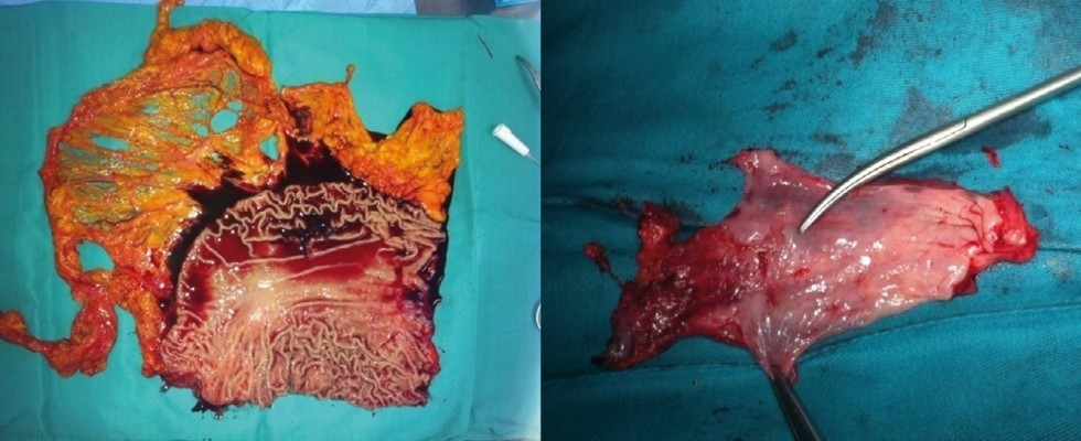 Esophageal sarcomatoid squamous carcinoma: Report of one case